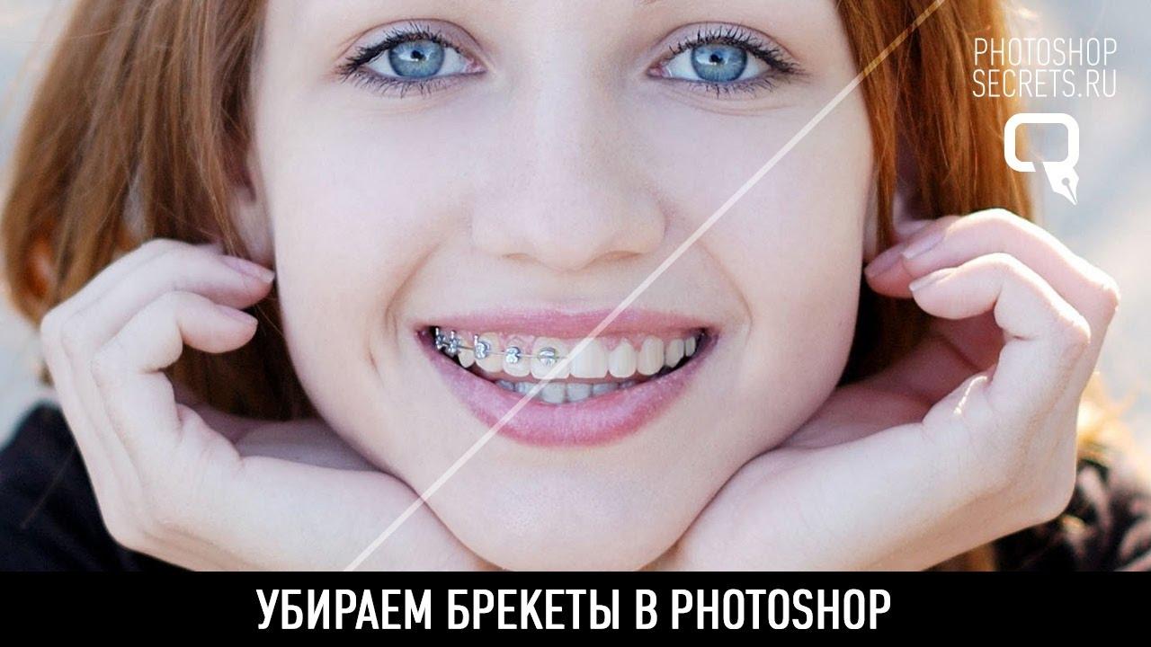 maxresdefault 44 - Убираем брекеты в photoshop