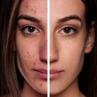 Набор уроков по ретуши кожи в фотошоп